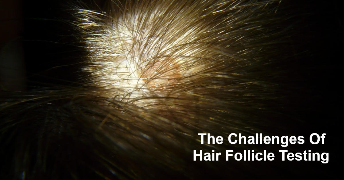 The Challenges Of Hair Follicle Testing
